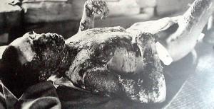 Hiroshima burn victim 1