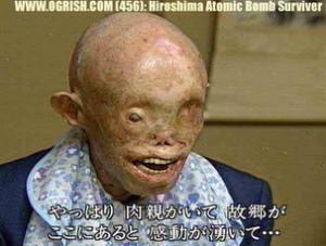 hiroshima_victim 2